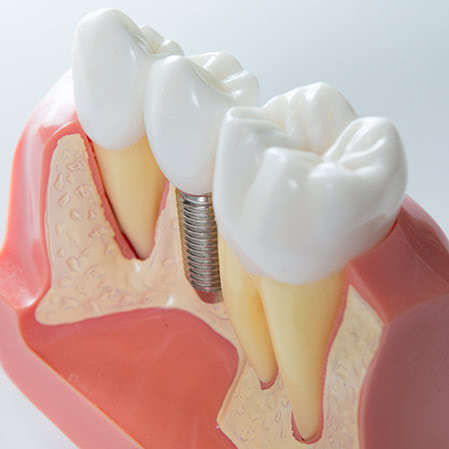 Mini-Dental-Implantate